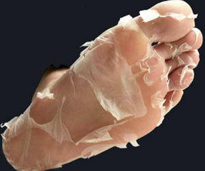 Profound Exfoliation Foot Peel